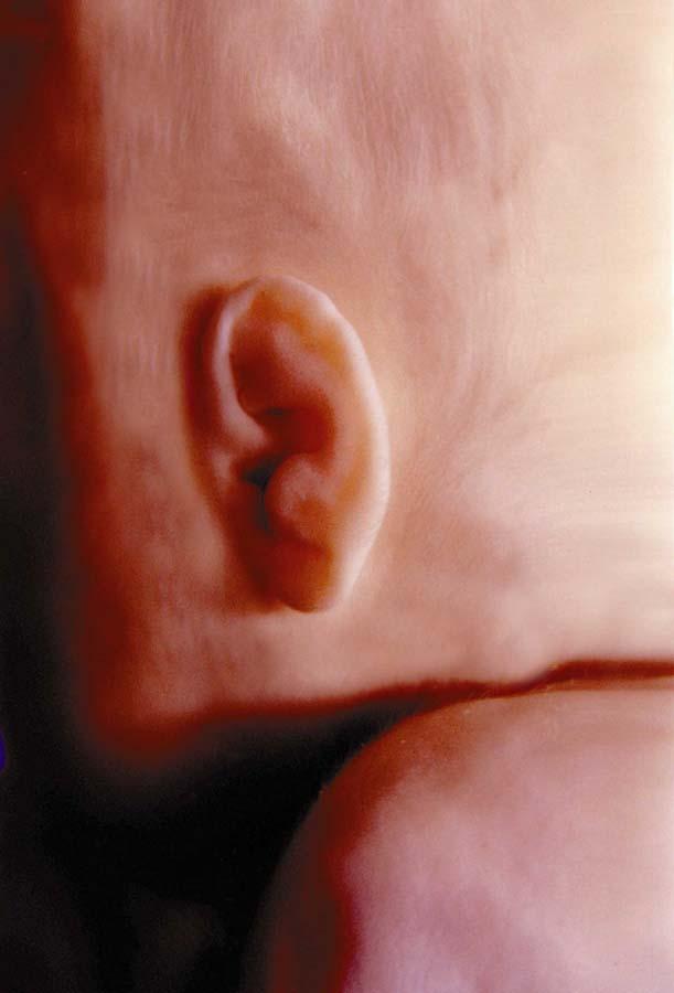 مراحل نمو الجنين بالصور  Fig04ear5mos
