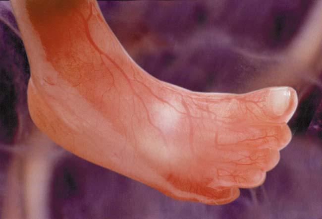 مراحل نمو الجنين بالصور  Fig05leg12