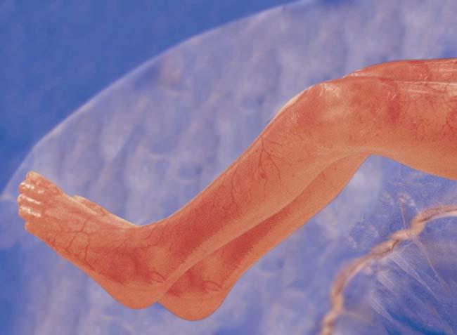 مراحل نمو الجنين بالصور  Fig15legs12