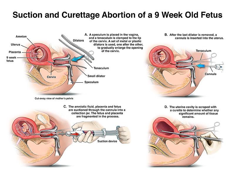 D & E Abortion